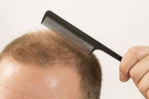 caduta dei capelli cosa fare
